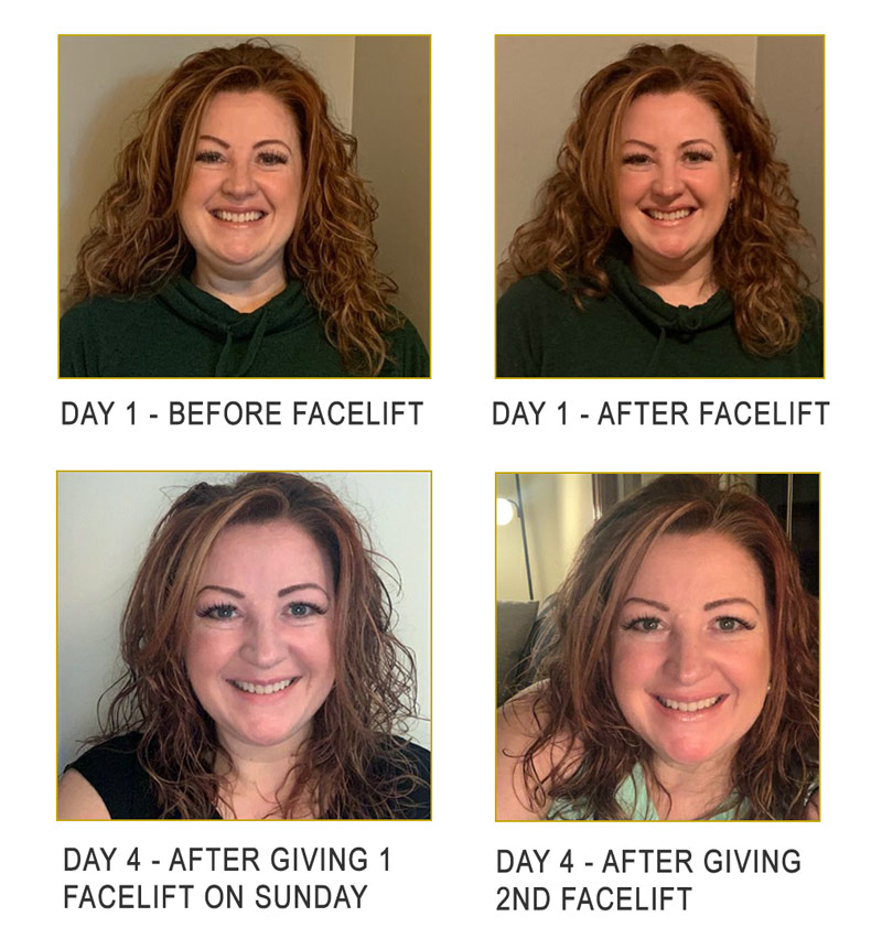Facelift: Day 1-4