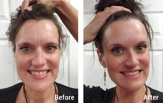 Before and after photos from an Access Energetic Facelift.