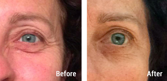 Before and after photos - Access Energetic Facelift